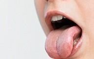 Nhận biết tình trạng sức khoẻ qua lưỡi