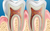 Chăm sóc nướu răng đúng cách