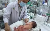 Khối u như một đứa trẻ dính vào cơ thể bé sơ sinh