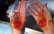 Giáo viên bắt học sinh bò bằng tay đến chảy máu
