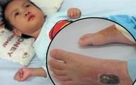 Đau đớn cảnh bé 28 tháng tuổi bất động vì lao màng não