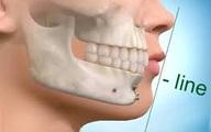 Nẹp vít cố định xương hàm được làm bằng chất liệu gì?
