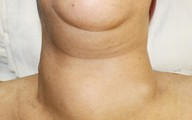 Giải pháp cho bệnh bướu cổ do rối loạn miễn dịch