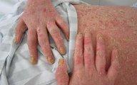 Hỏi và đáp về bệnh vẩy nến