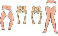 Sai lầm thường gặp khiến trẻ bị còi xương