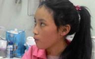BV Chợ Rẫy cứu sống thiếu nữ mắc bệnh tim hiếm gặp trên thế giới