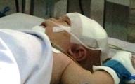 Phẫu thuật lần thứ hai, bé bị đâm xuyên sọ đã tự thở, tự bú