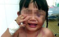 Bé 3 tuổi bị chồng hờ của mẹ đánh nhập viện
