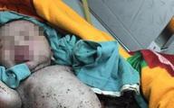 Lâm Đồng: Phát hiện bé trai còn nguyên dây rốn trong hố rác