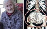 Bà cụ 91 tuổi phát hiện thai nhi nằm 60 năm trong bụng
