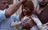 Xót xa cảnh bé gái Syria phải chữa bỏng bằng bùn ướt sau khi trúng bom napalm