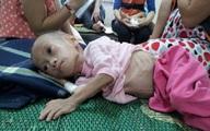 Cứ 6 trẻ dưới 5 tuổi nước ta có 1 trẻ bị suy dinh dưỡng