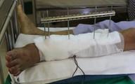 Phẫu thuật thành công bệnh nhân bị đứt rời cẳng chân trái