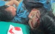 Người mẹ vẫn cho con bú dù bị thương nặng và đang đợi được điều trị gây xúc động