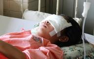 Xe máy nổ lốp khiến nữ sinh ngã dập não