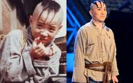 Cậu bé 'Tam Mao' ngày nào giờ phải đóng kịch mưu sinh vì bệnh lạ