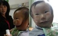 """Siêu âm thai bình thường, mẹ chết lặng khi sinh con """"2 mặt"""""""