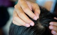 5 thực phẩm nên ăn nếu không muốn tóc bị bạc sớm