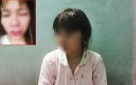 Giúp đỡ người bị thương, cô gái bức xúc vì bị đánh lệch sống mũi, rách miệng