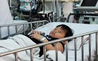 Bé trai 6 tuổi nuốt đèn LED phải cắt một phần thuỳ phổi