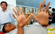 16 năm tăng chiều cao bất thường của bệnh nhân 2,5 m