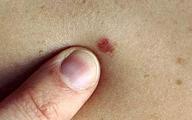 Ung thư từ nốt ruồi rất nguy hiểm, di căn nhanh: Những dấu hiệu của nốt ruồi cần cảnh giác