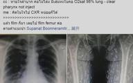 Ảnh X-quang toàn đốm trắng, lý giải của BS khiến nhiều người nghe xong phải bỏ kiểu ăn này