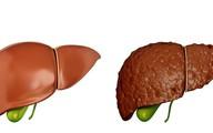 Khi có sự thay đổi này xảy ra ở ngực: 90% khả năng bạn đã bị xơ gan, hãy nhanh đi khám
