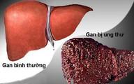 Chuyên gia ung bướu vạch mặt nguyên nhân khiến nhiều người mắc bệnh ung thư số 1 Việt Nam
