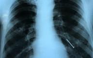 Người đàn ông bị đinh văng qua miệng vào phổi