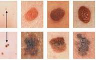 Dấu hiệu ung thư da nhiều người dễ bị nhầm lẫn, bỏ qua