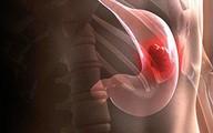"""Những dấu hiệu """"âm thầm"""" không gây đau đớn của bệnh ung thư dạ dày"""