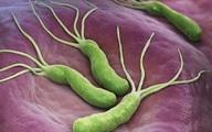 Tìm ra điểm yếu của vi khuẩn gây ung thư dạ dày, chuyên gia tiết lộ thực phẩm kiềm chế chúng