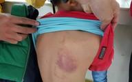 Đình chỉ cô giáo đánh bầm tím lưng học sinh lớp 2