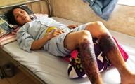 Người phụ nữ ở Hải Phòng bị bỏng hóa chất khi lội qua mương nước
