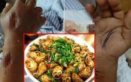 2 người phụ nữ tử vong sau khi ăn hải sản: Hãy cẩn trọng và đừng bao giờ ăn hải sản kiểu này
