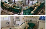 Các nạn nhân trong vụ phóng hỏa đốt nhà người tình ở Sơn La tiên lượng xấu