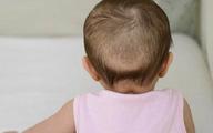 """Bác sĩ dinh dưỡng giải đáp 5 """"truyền thuyết"""" về bổ sung canxi và vitamin D cho trẻ"""