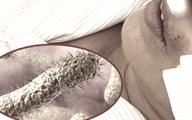 Vi khuẩn 'ăn thịt người' đột ngột tấn công nhiều bệnh nhân thực chất là gì?