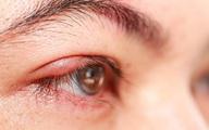 Nguyên nhân gây lẹo mắt
