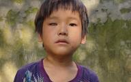 Bố mất sớm, mẹ bỏ đi, cậu bé dân tộc cần tiền chữa mắt