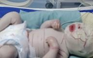 Từ trường hợp bé sơ sinh da khô cứng nứt nẻ, thai phụ cần đặc biệt lưu ý khi mang thai