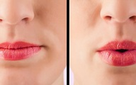 7 cách đơn giản có thể làm tại nhà để tăng cường sức đề kháng cho phổi