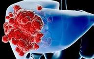 Những loại thực phẩm chế biến sẵn có liên quan lớn tới bệnh ung thư