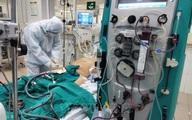 Lý do chưa thể ghép phổi cho phi công Vietnam Airlines mắc COVID-19