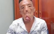 """Chuyện người đàn ông mang """"khuôn mặt quỷ"""" đến Sài Gòn tìm lại khuôn mặt người"""