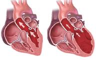 Ai dễ mắc bệnh thấp tim?