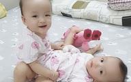 Hai bé gái dính nhau sắp được mổ tách