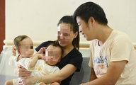 Ca đại phẫu thuật tách cặp song sinh: Tỷ lệ cứu sống là 74%