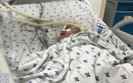 Bé 6 tháng tuổi suýt tử vong vì hóc xương lươn khi ăn dặm